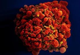 ژنوم ویروس ایدز در یک نمونه بافتی از سال ۱۹۶۶ یافت شد