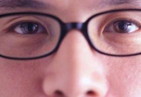 همهگیری کووید ۱۹ و مراقبت از چشمها