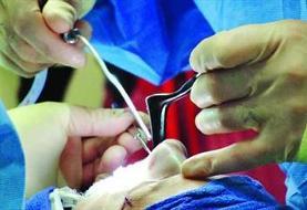 تبعات جراحی های زیبایی غیر قانونی در ایام کرونا