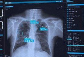 استفاده از  هوش مصنوعی در درمان کرونا