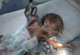 UNICEF: Millions of Yemeni children may starve amid pandemic