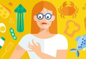 لیست غذاهای حساسیت زا و نحوه کنار آمدن با حساسیتهای غذایی