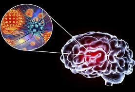 ۷ نشانه وقتی کرونا به مغز می زند!