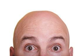 نتایج یک بررسی: احتمال ابتلا به بیماری شدید کرونا در مردان طاس بیشتر است