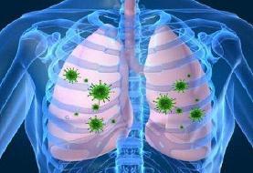 چرایی شدت درگیری ریه در افراد مختلف با کرونا مشخص نیست