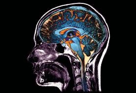ویروس کرونا چه آسیبهایی به مغز میزند؟