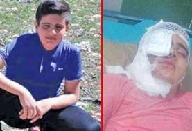 اسیدپاشی به پسربچه ۱۱ساله به خاطر یک بگومگوی ساده