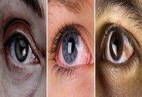 چشم&#۸۲۰۴;هایی كه می&#۸۲۰۴;خشكد