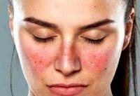 آیا بیماری لوپوس درمان دارد؟