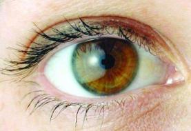 ویتامین A به درمان نابینایی ناشی از دیابت کمک می کند