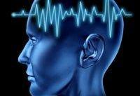 سکته مغزی ناشی از ابتلا به ویروس کرونا ۸ برابر آنفلوآنزاست