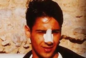 وقتی مجیدی مجبور شد بینیاش را عمل کند/عکس