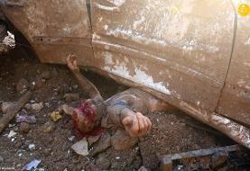 تصاویر دلخراش از یک مرد در آستانه مرگ در انفجار بیروت