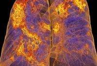 ریه بیماران مبتلا به کرونا پس از بهبودی از بین می&#۸۲۰۴;رود؟