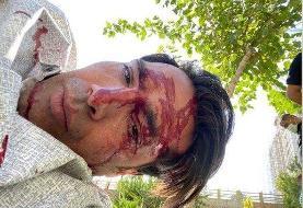 ببینید | صورت خونآلود بازیکن سابق استقلال پس از تصادف وحشتناک با موتور