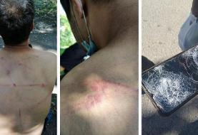 شلاق، چوب و باتون/ روایت پناهجویان از خشونت پلیس رومانی