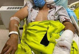 انگشت یک فوتبالیست در تصادف رانندگی قطع شد