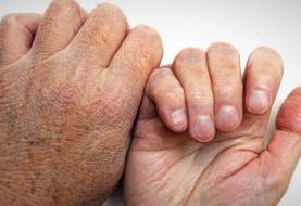 ۹۵درصد جمعیت بشری هرگز جذام نمی گیرند ونسبت به آن ایمنی دارند