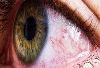 شایع ترین علائم &#۱۷۱;چشمی&#۱۸۷; ابتلا به کرونا