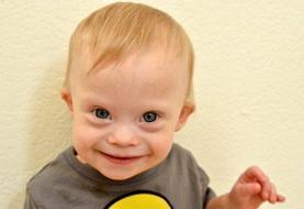 کاهش تغییرات صورت کودکان مبتلا به سندرم داون با عصاره چای سبز