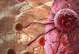 ۳ عامل بروز سرطان ها / روش های طبخ گوشت و تاثیر آن بر بروز سرطان