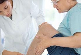 راهکارهایی برای جلوگیری یا درمان واریس برای افراد با مشاغل ایستادنی و نشستنی