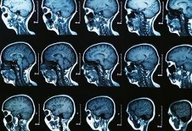 شناسایی ۳ زیرگروه جدید بیماری «ام.اس» با کمک هوش مصنوعی