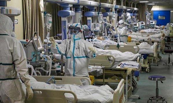 دو درصد بیماران کرونایی در ICU دچار سکته مغزی می شود