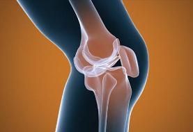 وزن هنگام تولد با خطر پوکی استخوان مرتبط است