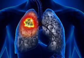 علائم عجیب سرطان ریه را بشناسید