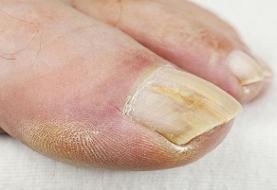 سرطان پوست می تواند ناخن ها را هم درگیر کند