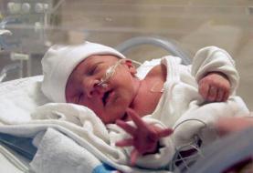 نوزادان پسر نارس در بزرگسالی زودتر پیر میشوند