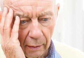 تشخیص بیمای آلزایمر با استفاده از هوش مصنوعی