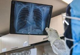 ۱۳۶ بیمار دیگر کرونا در کشور جان باختند