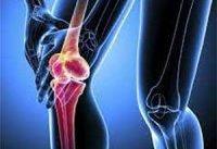 زنان بیش از مردان در معرض خطر پوکی استخوان قرار دارند