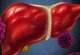 پاسخ به پرسشهای رایج درباره بیماری هپاتیت E