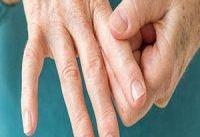 زنان ۲ برابر مردان به بیماری آرتریت روماتوئید مبتلا می&#۸۲۰۴;شوند