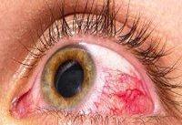 ۲۰ درصد تیروئیدی&#۸۲۰۴;ها مبتلا به علایم چشمی هستند