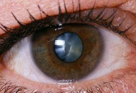 ۲۰ درصد تیروئیدیها مبتلا به علایم چشمی هستند