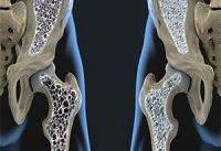بهترین راه پیشگیری از پوکی استخوان در سنین بالا