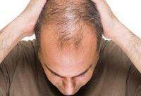 ریزش مو از عوارض جدید ابتلا به کووید ۱۹