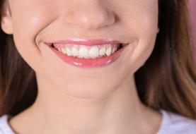 لبخند لثه ای؛ زشت یا زیبا؟ چه روشهایی برای اصلاح آن وجود دارد؟