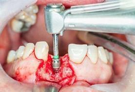 قیمت ایمپلنت دندان در کلینیک های دندانپزشکی به چه عواملی بستگی دارد؟