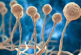 شناسایی نخستین بیمار مبتلا به قارچ سیاه در نیشابور